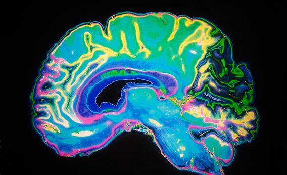 130702_sci_brainscandopamine-jpg-crop-rectangle3-large