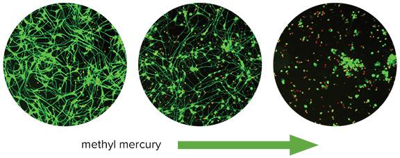 methyl mercury neurons